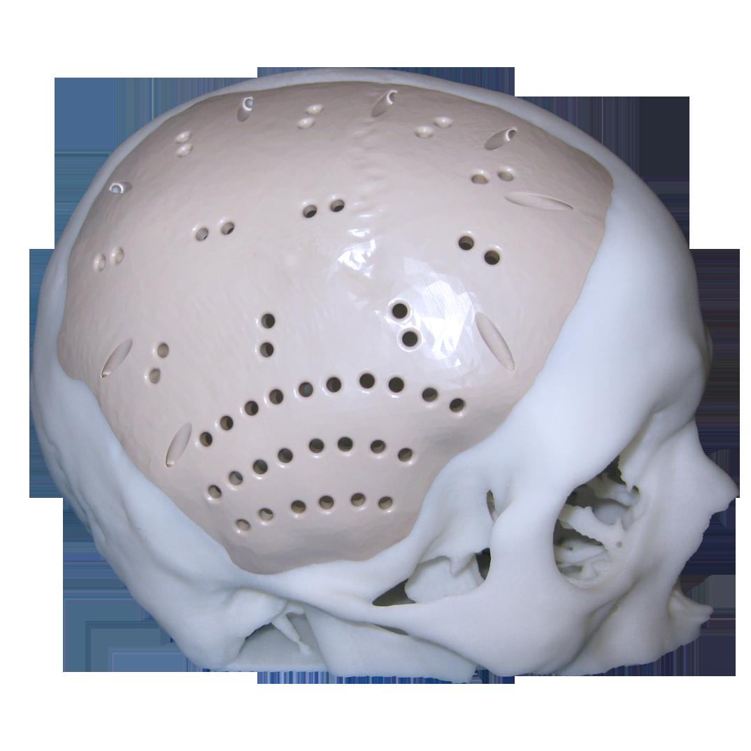 Cranial plate in PEEK