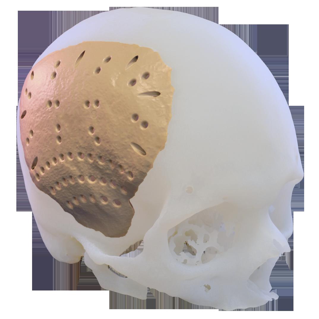 Cranial plate in titanium