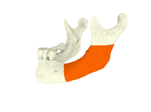 mandible guide.85