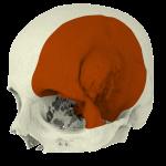 meningioma2.26