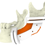 Mandible resection using a surgical guide