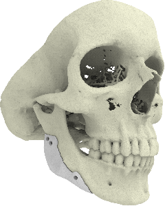 3D printed CT-Bone implant for mandible augmentation