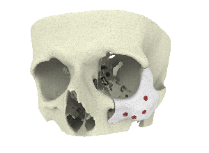 3D printed CT-Bone implant for zygoma augmentation