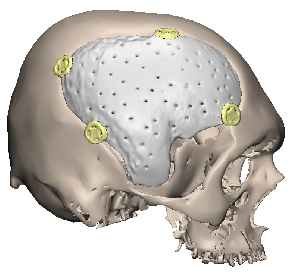 PMMA implant fixed with craniofix
