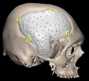 PMMA implant fixed with craniofix