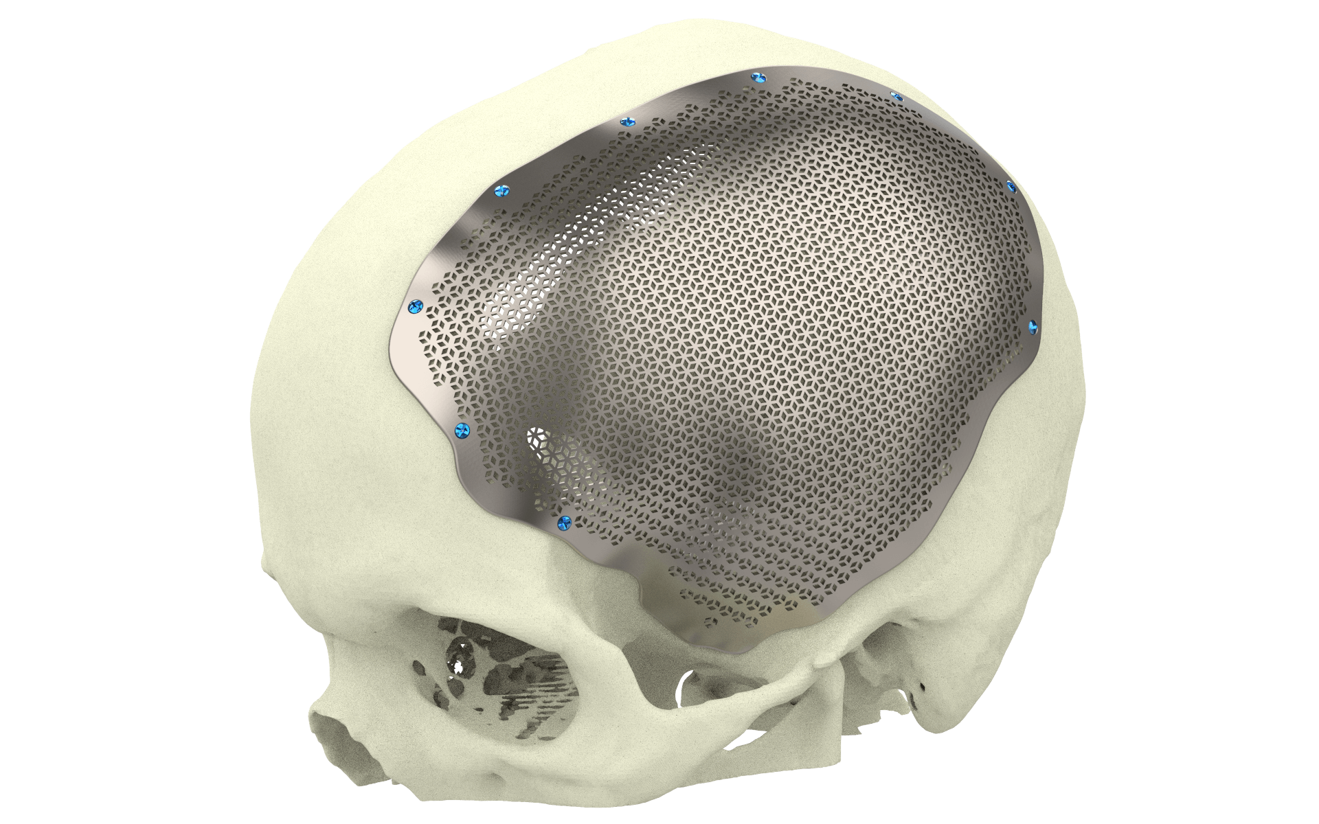 Xilloc Medical B.V. – Cranial Implant Patient Specific Implant Titanium Onlay