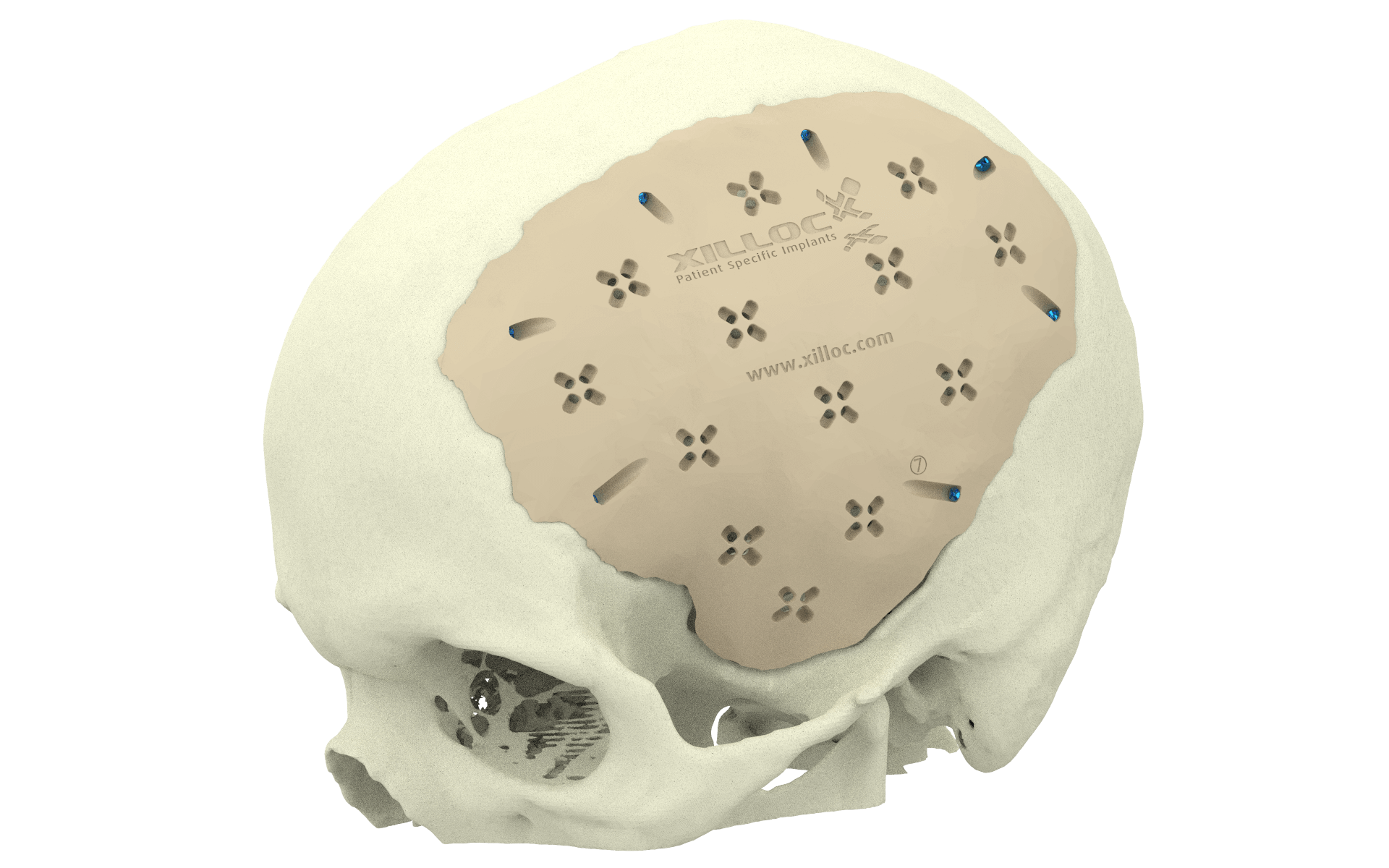 Xilloc Medical B.V. – Cranial Implant Patient Specific Implant