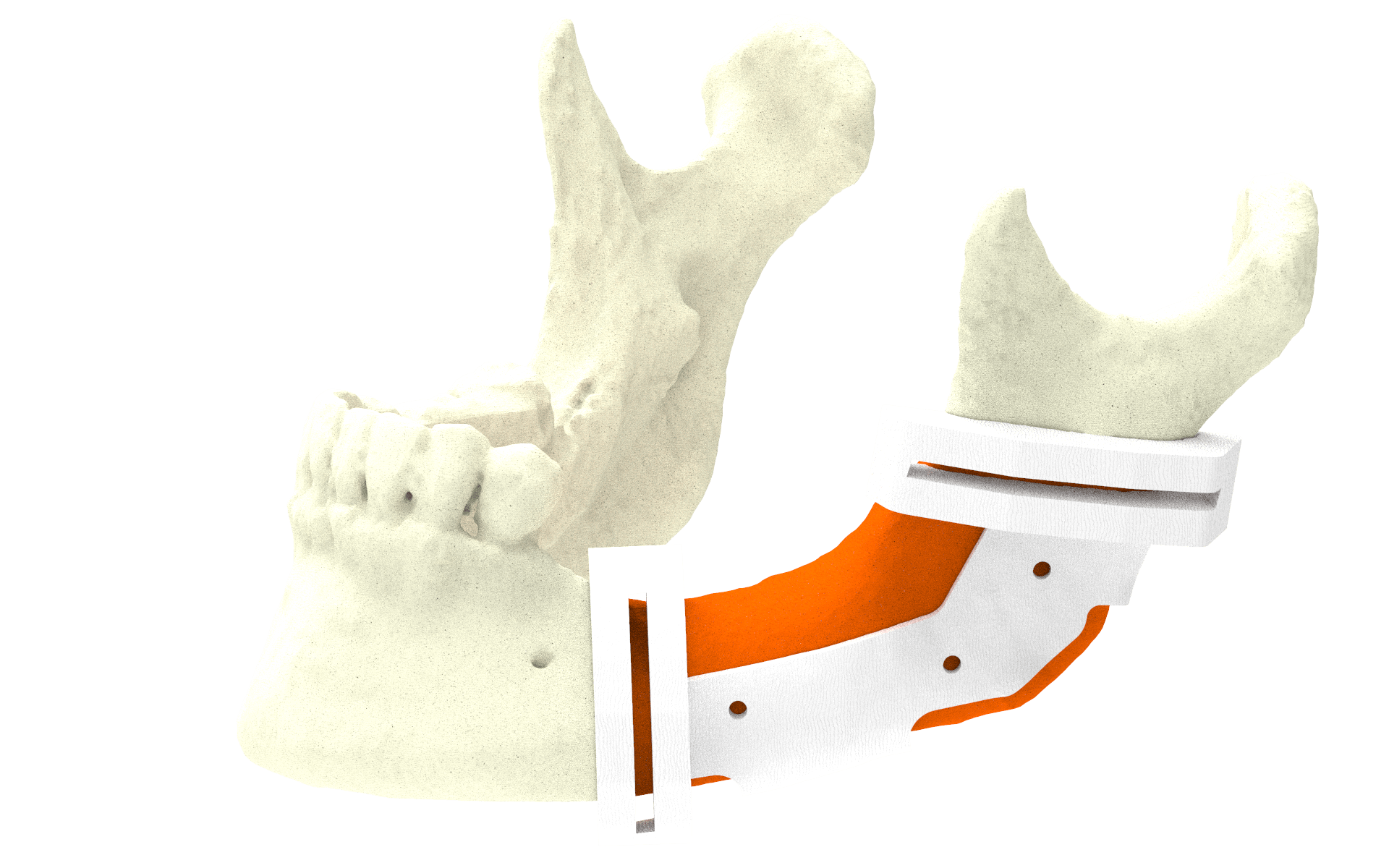 Xilloc Medical B.V. – Mandibular Surgical Guide 1.0