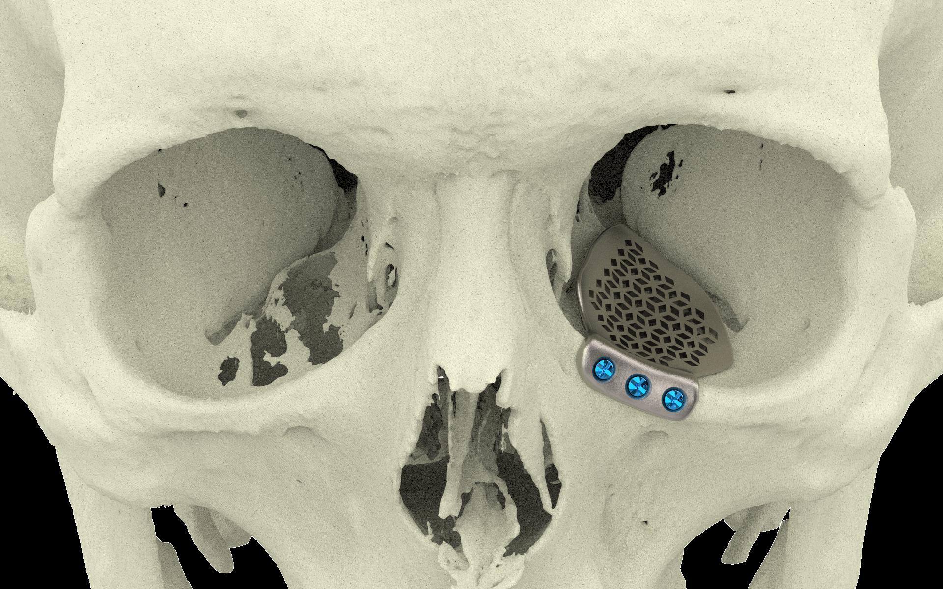 Orbital Floor | Xilloc